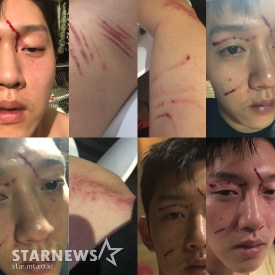구하라 전 남자친구 최종범 측이 스타뉴스에 공개한 9월 13일 폭행 사건 당시 피해를 입었다고 주장한 상처의 모습 /사진=최종범 측